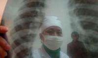 Ученые создали новый противотуберкулезный препарат