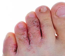 Как избавиться от грибка на ногах?