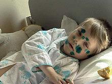 Российский ребенок вызвал вспышку заболевания на турецком курорте