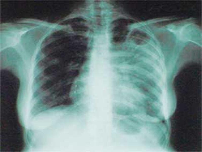 Паника: новый туберкулез не поддается лечению