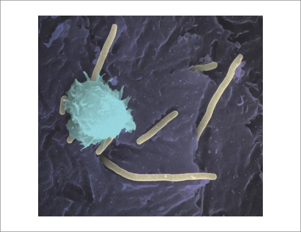 Инфекции уринарного тракта паразитируют на защитной системе хозяина