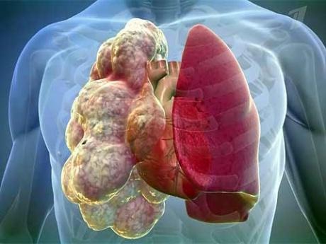 Медики смогут эффективнее лечить болезни легких