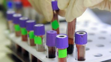 Резистентная к антибиотикам гонорея заставляет медиков опасаться «супербактерии»