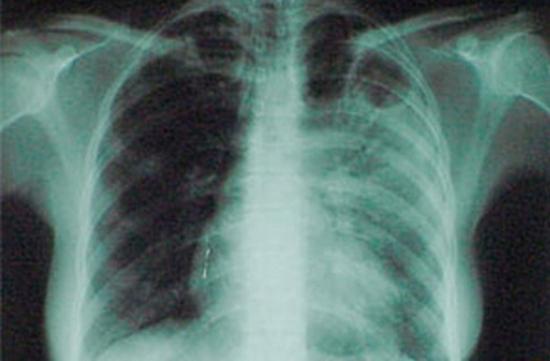 Новый антибиотик может помочь в борьбе с резистентным к лечению туберкулезом
