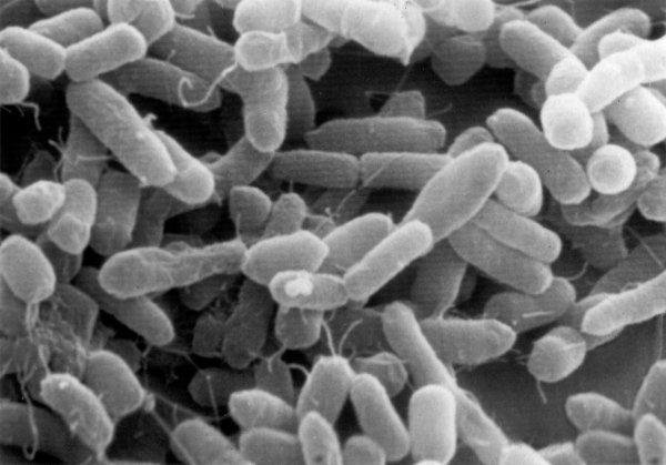 Причиной вспышки кишечной инфекции в интернате Бикина стали нарушения на пищеблоке