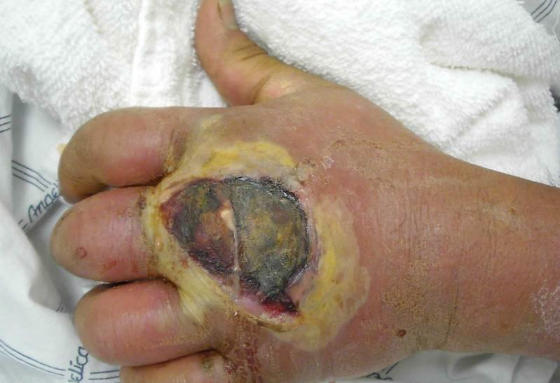 Найдена новая мишень для лечения стафилококковой инфекции