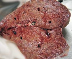 Сочетанная инфицированность ВИЧ и вирусом гепатита С ускоряет развитие фиброза печени