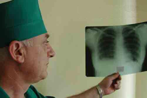 Для лечения столичных бездомных от туберкулеза создадут специальные отделения