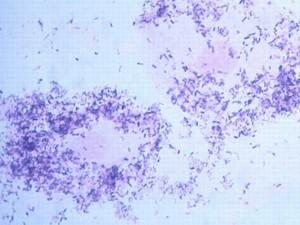 Гарднереллу считают причиной осложнений бактериального вагиноза