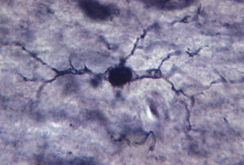 Иммунная система мозга производит антибиотик