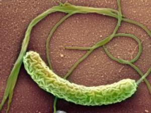 В Вологодской области победили «ненастоящую» холеру