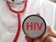 Открытие: ВИЧ заставляет иммунные клетки убивать себя