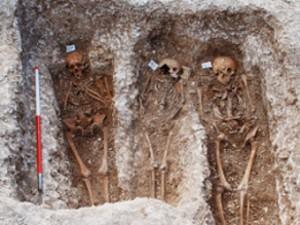 Найдена причина ослабления эпидемии проказы в Средние века
