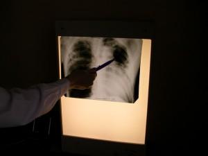 Ученые РФ испытывают вакцины против ВИЧ, туберкулеза и рака