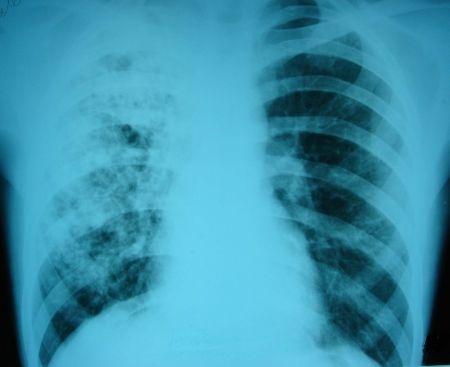 В РФ в 2012 г возросло число болеющих одновременно туберкулезом и ВИЧ
