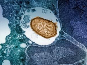 Болезнь Паркинсона и защита от туберкулёза оказались связаны одним и тем же белком