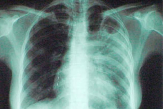 Заболеваемость туберкулезом не снижается, а занижается
