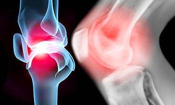Симптомы и лечение острого инфекционного артрита