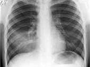 Двое из 35 заболевших пневмонией школьников перевезены в Воронеж