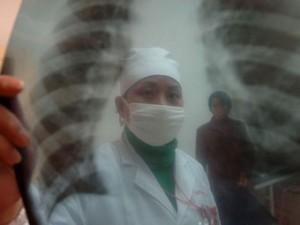 На лечение туберкулеза выделено 4 млрд рублей