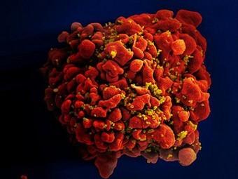 «Спящую» часть ВИЧ недооценили в 60 раз