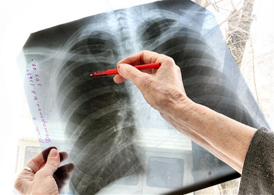 ВОЗ обеспокоена распространением лекарственно-устойчивого туберкулеза в России