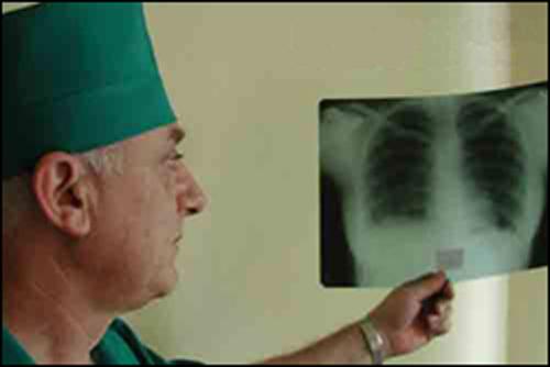 Туберкулез, лечение возможно?