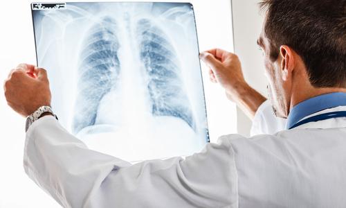 Пневмония уносит полтора миллиона детских жизней в год