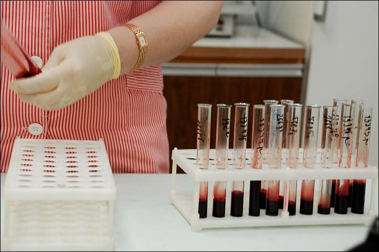 Ученые вплотную подошли к созданию вакцины от ВИЧ