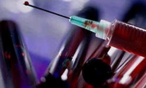Более половины ВИЧ-инфицированных в России находятся в возрастной категории от 15 до 39 лет