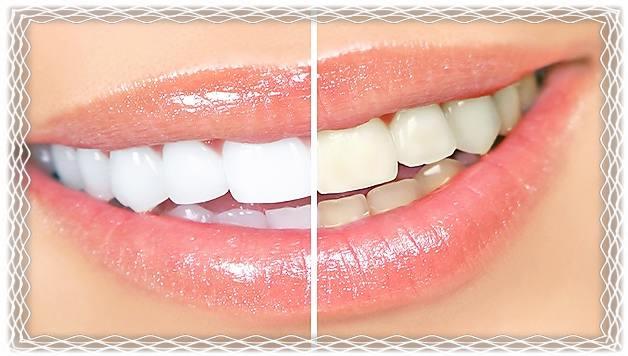 Лучшие народные средства для отбеливания зубов