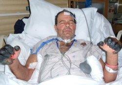 Вспышка чумы на Мадагаскаре унесла десятки жизней