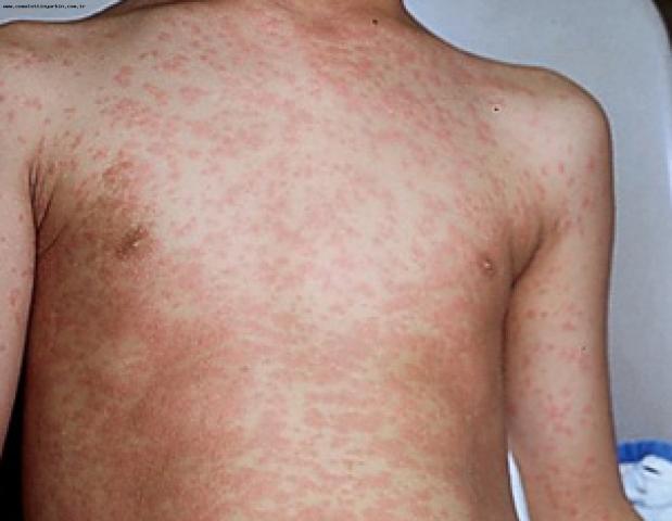 Более тысячи человек в Ровенской области заболели корью