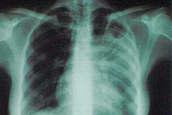 Власти Колымы вводят дополнительные меры для борьбы с туберкулезом