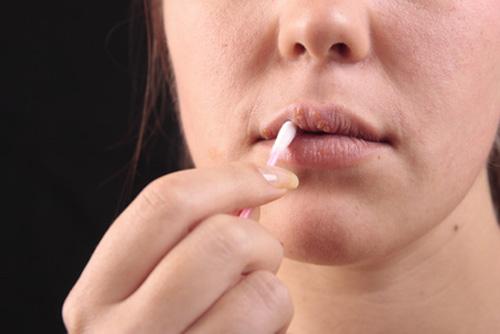Новый препарат противостоит бессимптомному проявлению вируса герпеса