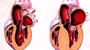 Лечение больных гипертрофической кардиомиопатией