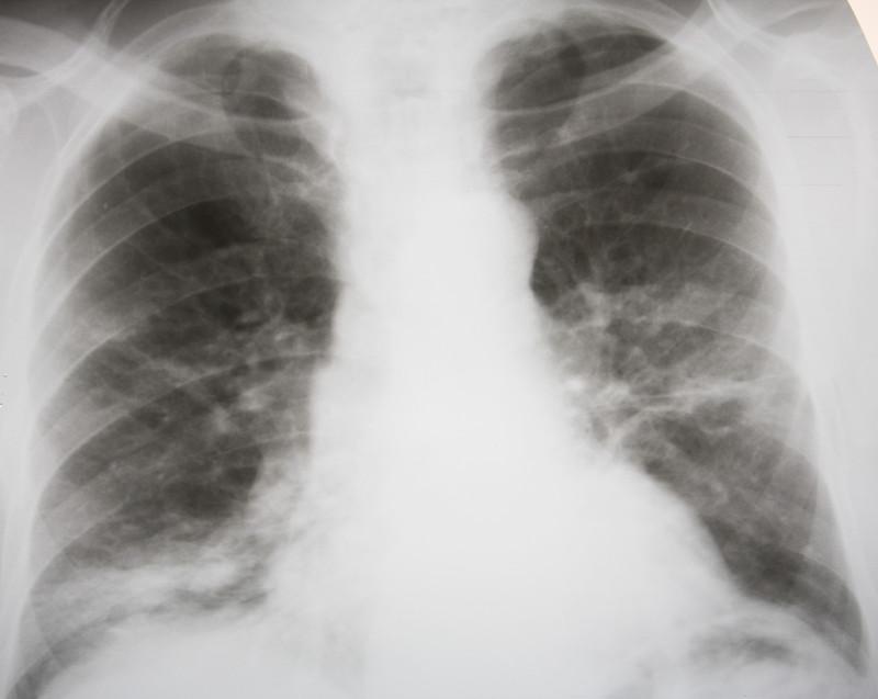 Народные средства лечения пневмонии: возьмите на заметку