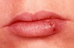 Герпес на губах: лечение и симптомы