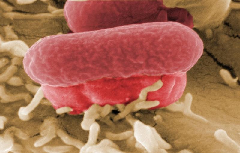 СКР выясняет обстоятельства вспышки кишечной инфекции в детсаду Вологды