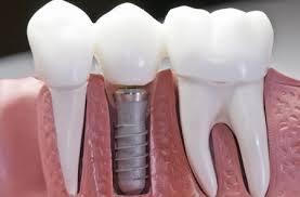 Зубные имплантаты: все за и против