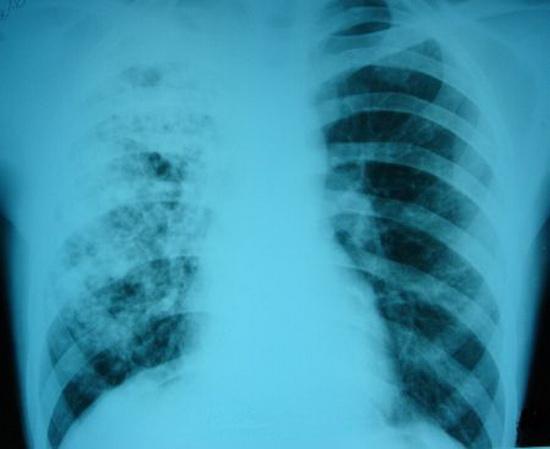 «Генериум» безвозмездно передает ЛПУ Республики Крым партию высокоэффективного теста для диагностики туберкулеза у детей и подростков