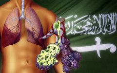 В Саудовской Аравии коронавирусом заразились более 400 человек