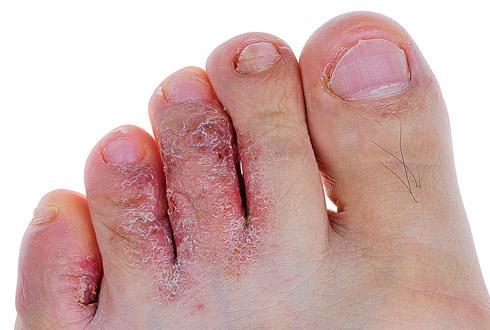 Грибковые инфекции
