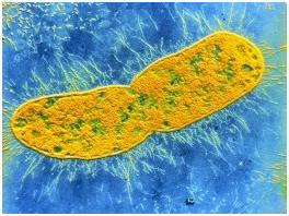 Супербактерия, устойчивая к антибиотикам, распространяется по Ближнему Востоку