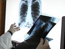 Даже самый стойкий туберкулез можно вылечить, заявляют исследователи