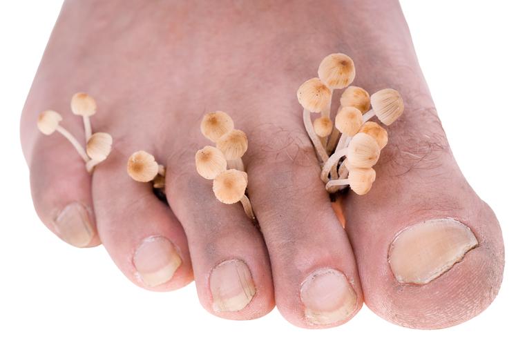 Грибок на ногах: опасная инфекция