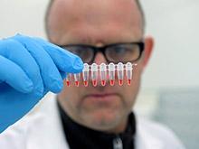 Иммунную систему легко обмануть, показывают наблюдения за вирусами