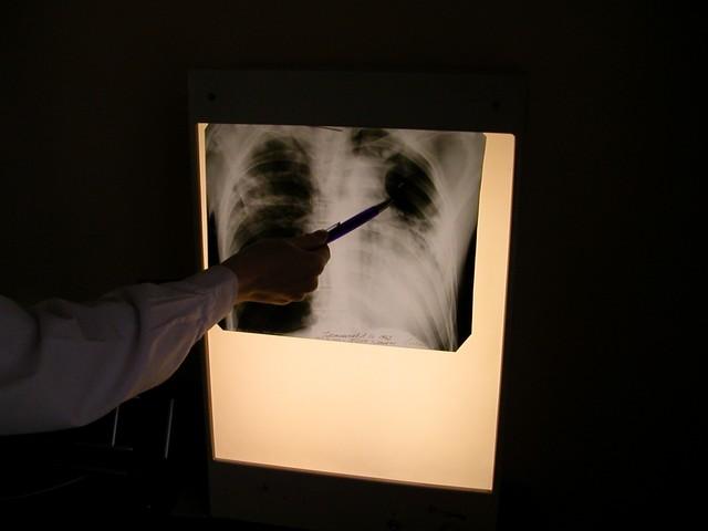 Туберкулез пришел к людям от морских котиков