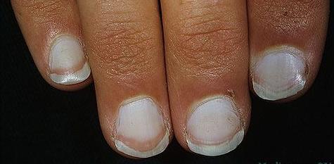 Что делать с белыми пятнам на ногтях?