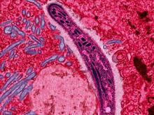 Антибиотики могут повернуть лечение малярии в новое русло